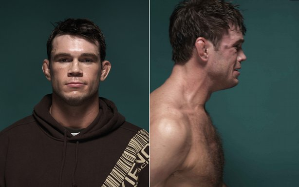 Forrest Griffin Before and After UFC 66, 2007  © Zuffa, LLC and Kevin Lynch