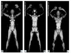 The millimeter wave whole body imager scans people's bodies.
