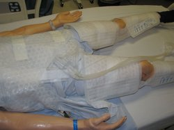The tools of therapeutic hypothermia: wraps filled with cold water are placed on a person's thighs and torso. A patient is kept in a hypothermic state for 24 hours, then gradually warmed up.