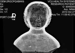 This x-ray shows this dolls head is hollow. Family legend says during the Civil War they stowed medicine inside the doll's head and had a young girl carried the doll through the Northern blockade.