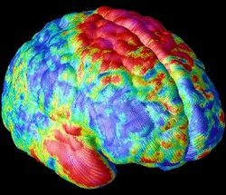 Brain Scan Of Patient With Schizophrenia