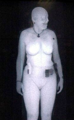 An X-ray scan of a woman.