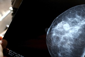 Review Finds Mammography's Benefits Overplayed, Harms Dis...