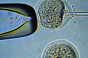 First Embryonic Stem Cells Cloned From A Man's Skin