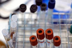 Wide Range Of Hospital Charges For Blood Tests Called 'Ir...