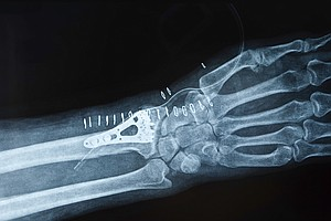 Have You Broken A Wrist? Men Are At Risk Of Osteoporosis, Too