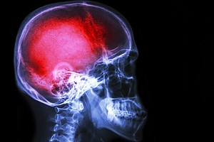 Pain Really Is All In Your Head. Emotion Controls Intensity
