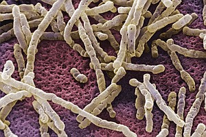 Infections With Dangerous Gut Microbe Still On The Rise