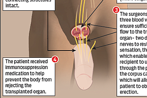 Botched Ritual Circumcision Leads To World's First Penile Transplant