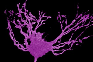 Hackers Teach Computers To Tell Healthy And Sick Brain Cells Apart