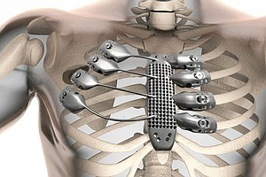 Engineers Create A Titanium Rib Cage Worthy Of Wolverine