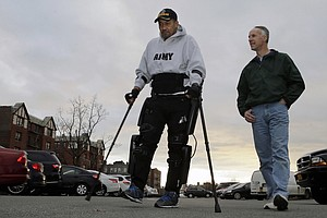 Department Of Veterans Affairs To Pay For Robotic Legs