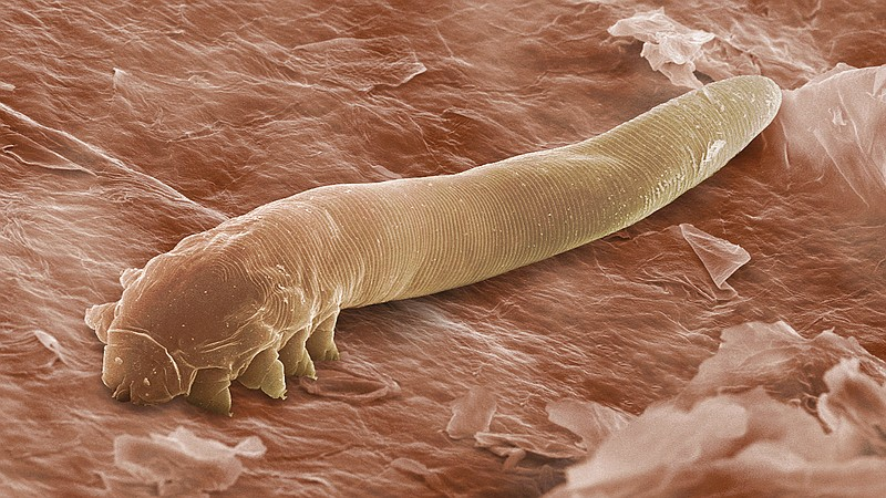 Our Parasites And Vermin Reveal Secrets Of Human History | KPBS