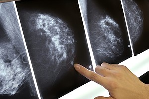 Got Dense Breasts? That Can Depend On Who Is Reading The Mammogram