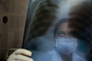 A Teen's Family Fought To Get Her A Restricted TB Drug — ...