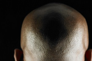 Bald Men Are Being Hunted Down In Mozambique