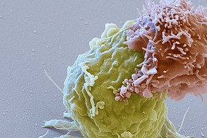 'Living Drug' That Fights Cancer By Harnessing The Immune...