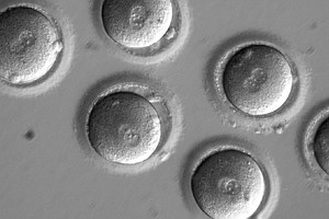 Scientists Precisely Edit DNA In Human Embryos To Fix A Disease Gene