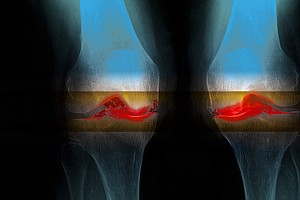 6,000-Year-Old Knee Joints Suggest Osteoarthritis Isn't J...