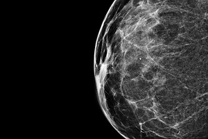 When You Need A Mammogram, Should You Get One In '3-D'?