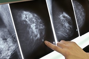 For Some Breast Cancer Patients, The Chemo Decision Just ...
