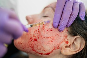 'Vampire Facial' Becomes Actual Horror As N.M. Spa Client...