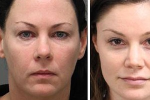 2 Women Charged With Sexual Battery Of Trans Woman In Nor...