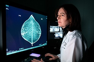 Training A Computer To Read Mammograms As Well As A Doctor