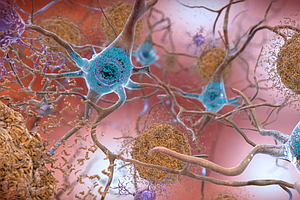 New Markers For Alzheimer's Disease Could Aid Diagnosis A...