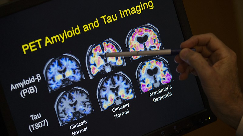 In a May 19, 2015 file photo, R. Scott Turner, Professor of Neurology and Dir...