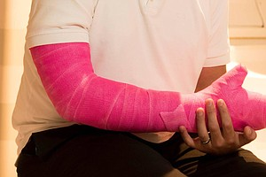 A Scientist's Pink Cast Leads To Discovery About How The Brain Responds To Di...