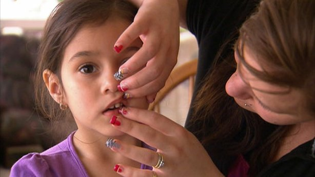 Lead: Kari Reyes (right) examines the front teeth of her four-year-old daughter, Marisa.