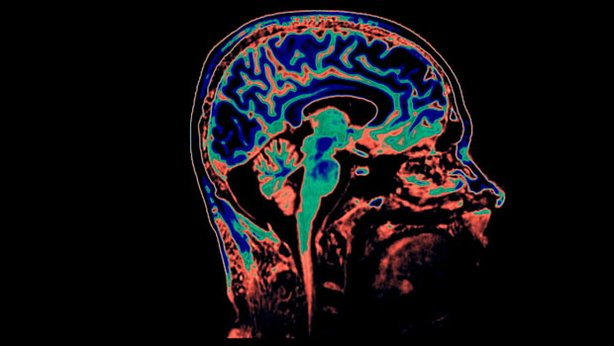 Brain Scan - CAT Scan and MRI Images in color