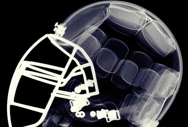 Football helmet graphic. What did the NFL know about the connection between f...