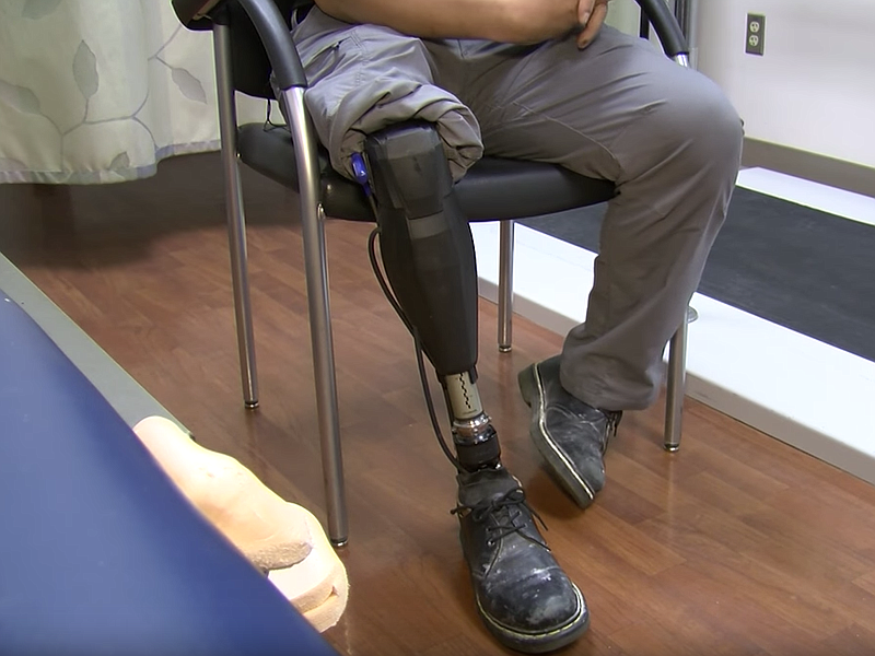 The photo shows the prosthetic leg of a Navy veteran, March 22, 2017.