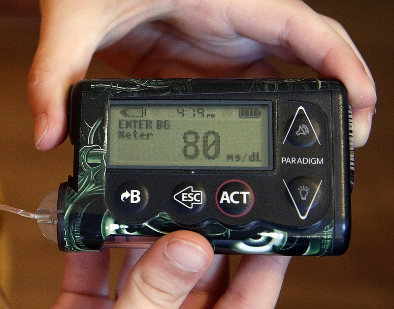 A insulin pump for managing diabetes, May 13, 2015.