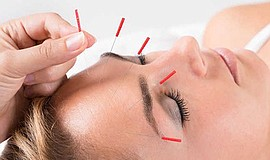 Promo graphic for All About Acupuncture
