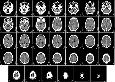 Promotional photo of brain scans. Courtesy of The Center ...