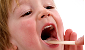 Acupuncture Instead of Codeine for Tonsillectomy Pain in Children