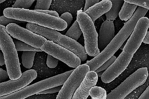 La Jolla Scientists Find New Way To Fight E. Coli Poisoning