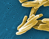 Tuberculosis Cases Found At Vista, San Ysidro Schools