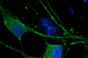 Tease photo for Stem Cells Give San Diego Scientists Useful Portrait Of Schizophrenia
