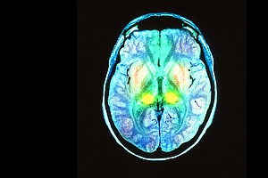 Tease photo for California's Brain Initiative Announces First Wave Of Funding