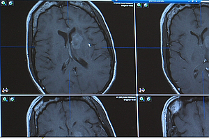 Study: Shelved San Diego Drug Could Fight Deadly Brain Di...