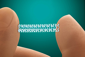 Dissolving Heart Stent Hits San Diego Market