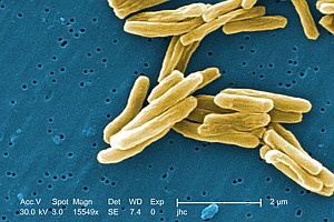 Tease photo for Two Tuberculosis Cases Reported At San Diego County Schools