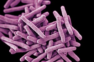 Drug-Resistant Bacteria At Tijuana Hospital Reignites Urgency To Find Superbu...