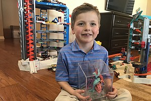 Pediatric Surgeons Use 3D Printing To Help With Complex Operations