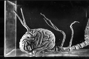 Disembodied Brains Are Scary Or How Sci-Fi Influences Science