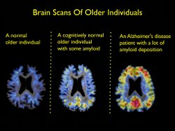 Scientists can now measure abnormal proteins in the brain called amyloid beta...